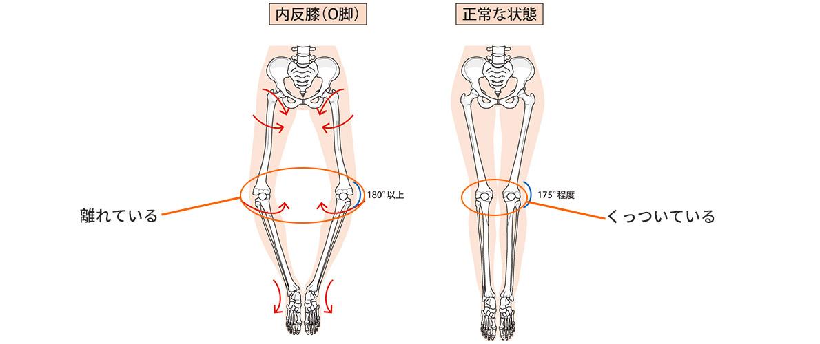 膝痛はなぜ起こるの?